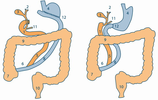 Разновидности билиопанкреатического шунтирования: операция Scopinaro (слева) и операция Hess and Ней (справа)